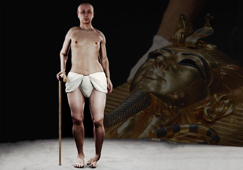 Фараон Тутанхамон был уродцем