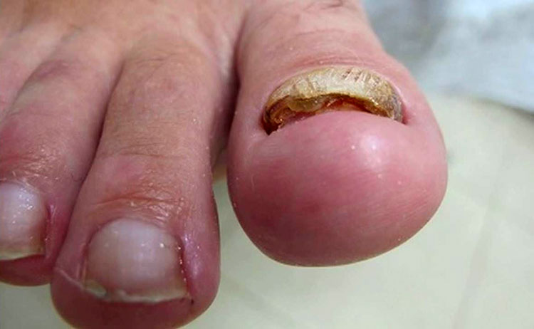 Лечение грибка ногтей в запущенной форме